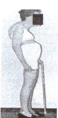 מראה גוף במצב של אוסטיאופורוזיס