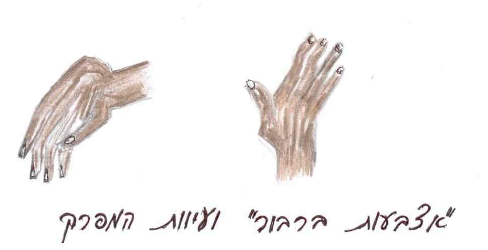 זנב הברבור - שלב מתקדם במחלת דלקת מפרקים ריאומטית (Rheumatoid Arthritis), בה אנו רואים  עיוות (דפורמציה) של  מפרקי האצבעות.