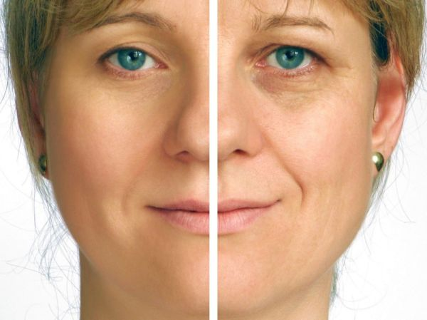 """אישה מעלימה קמטים בעור הפנים ונפיחות מתחת לעיניים בעזרת שימוש ב""""אינסטנטלי אייג'לס"""". רוצה לדעת איך? התקשרי אלי עכשיו: 050-5342196,  יוסי"""