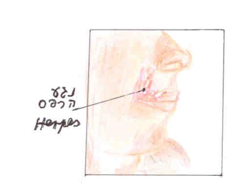 נגע הרפס (Herpes), נגרם מוירוס ההרפס. פורמולה סינית מדור שלישי, פתרון טבעי, יעיל  ומהיר לטיפול בהרפס